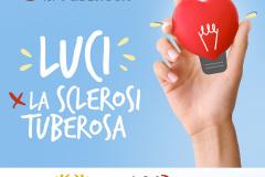 13. Luci per la Sclerosi Tuberosa
